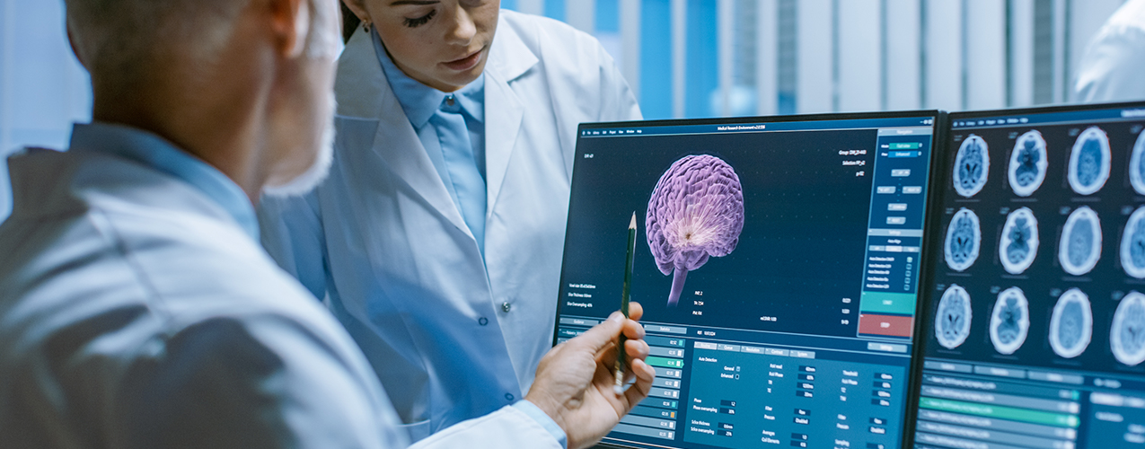 Researchers looking at brain image