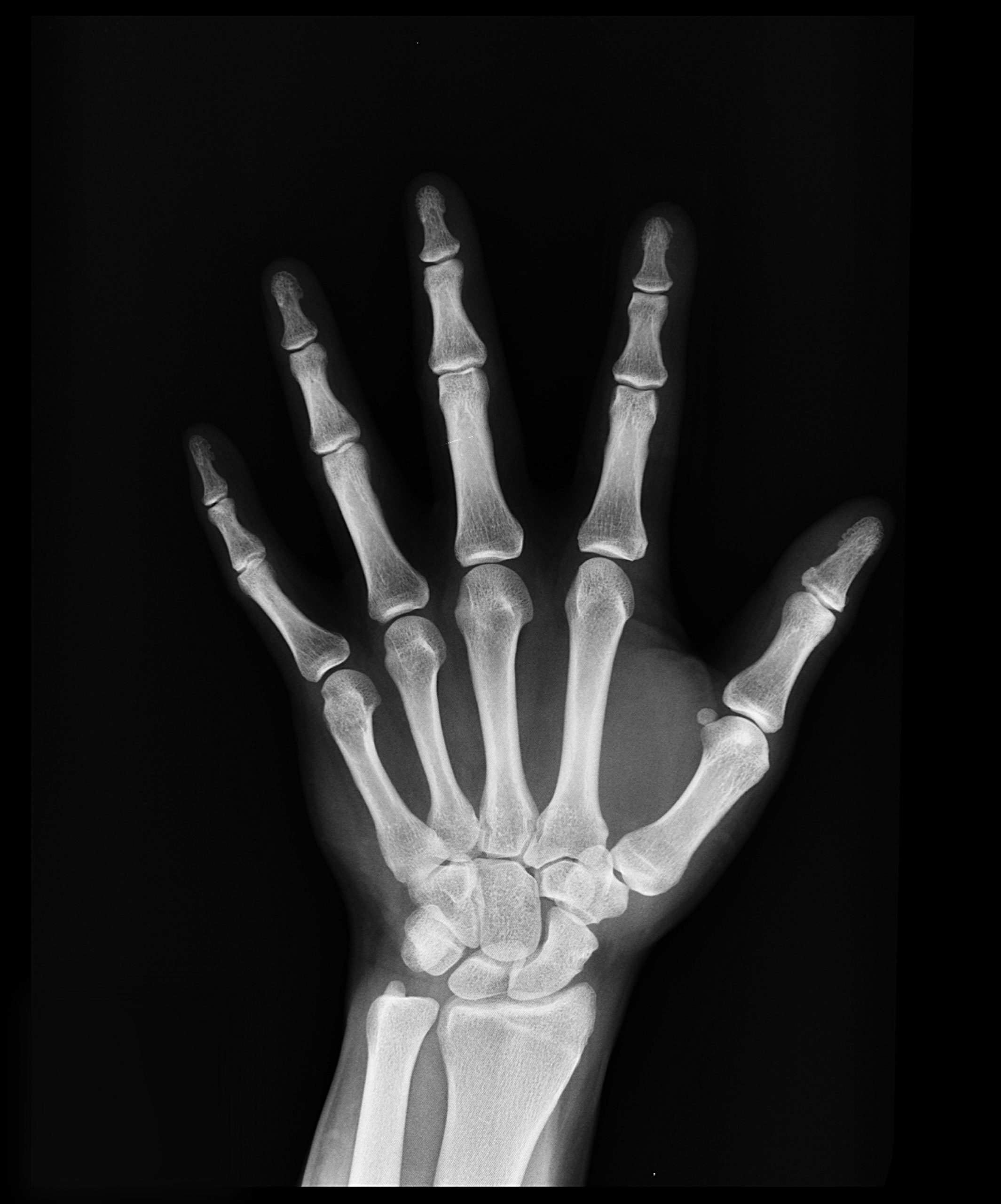 FESSH Clinical and Basic Research Grants for Hand Surgery Open for Application